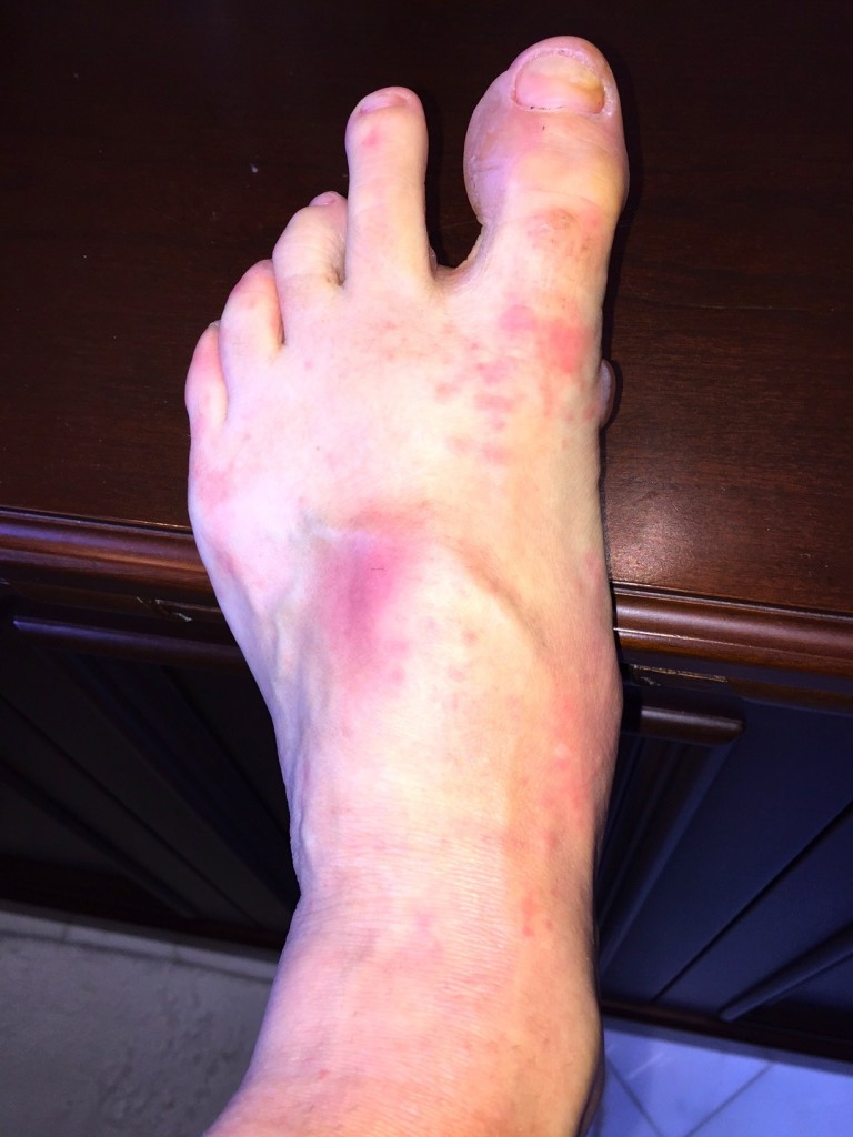 Blisters, a bruise on top of my foot, and a weird rash.