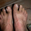 My feet about 100 miles into a 170-mile self-supported stage race in 2012, before I learned to tape them properly.